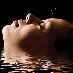acupuncture-head